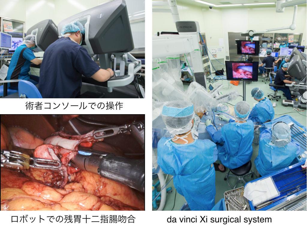 胃がんに対するロボット支援腹腔鏡下胃切除術
