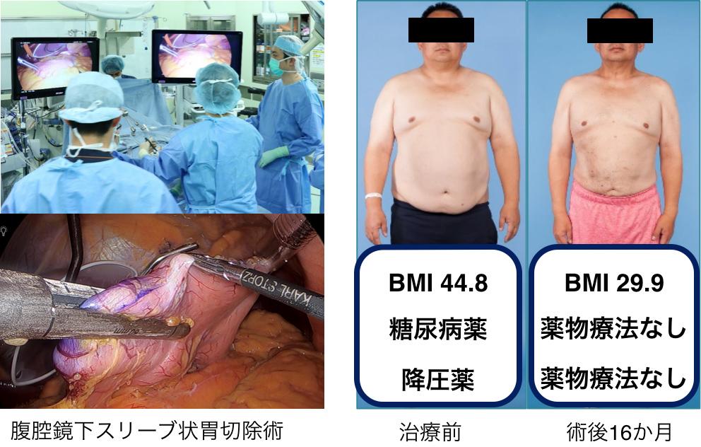 高度肥満症に対する肥満外科治療