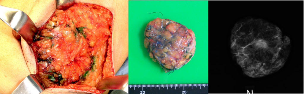 乳がん手術:乳房部分切除(乳がん)