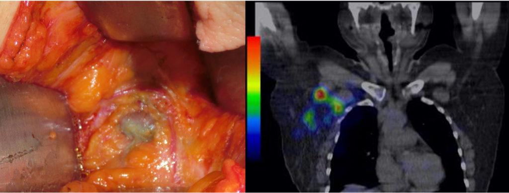色素法+RI法を併用したセンチネルリンパ節生検(乳がん)