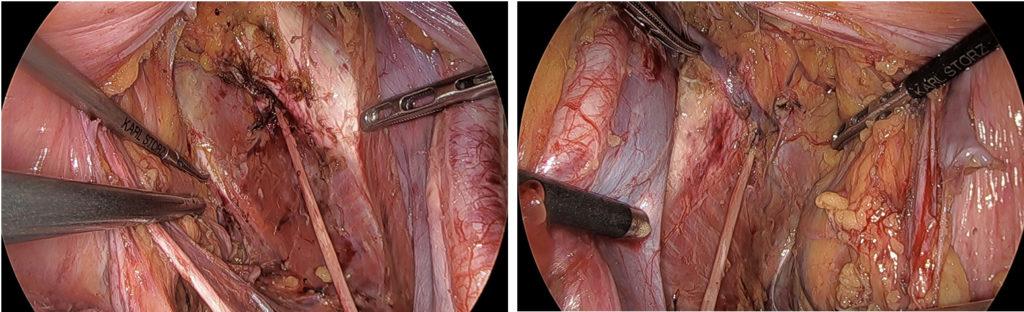 腹腔鏡下側方郭清