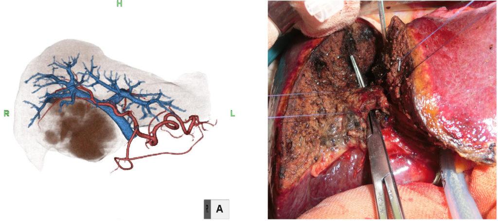 開腹肝切除術