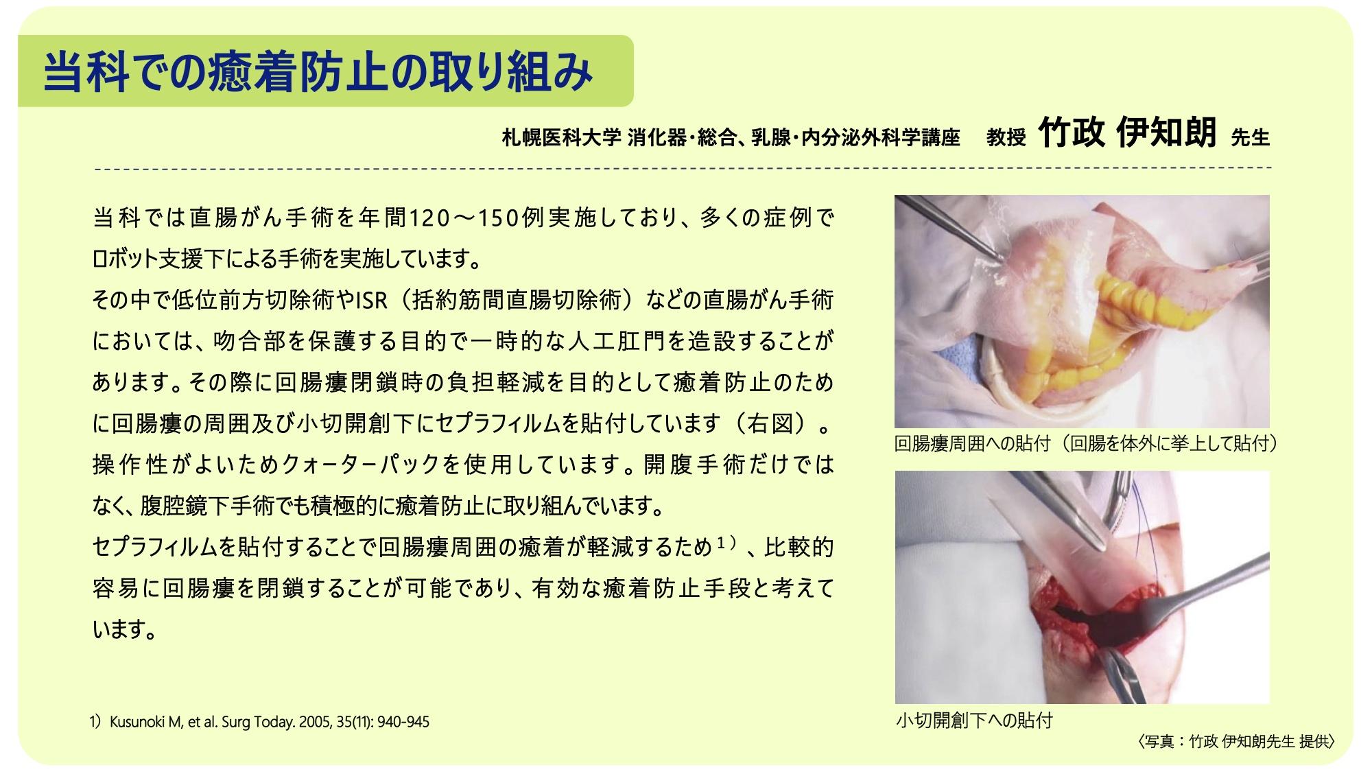 術後癒着防止のエビデンス 〜当科での癒着防止の取り組み〜 - 札幌医科 ...